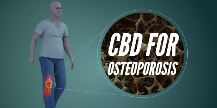 Effectiveness of CBD in Osteoporosis, Can it help YOU?